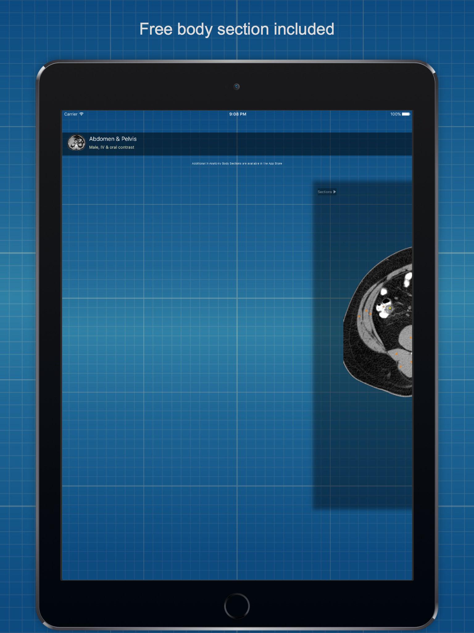 X-Anatomy Free App Ranking and Store Data | App Annie
