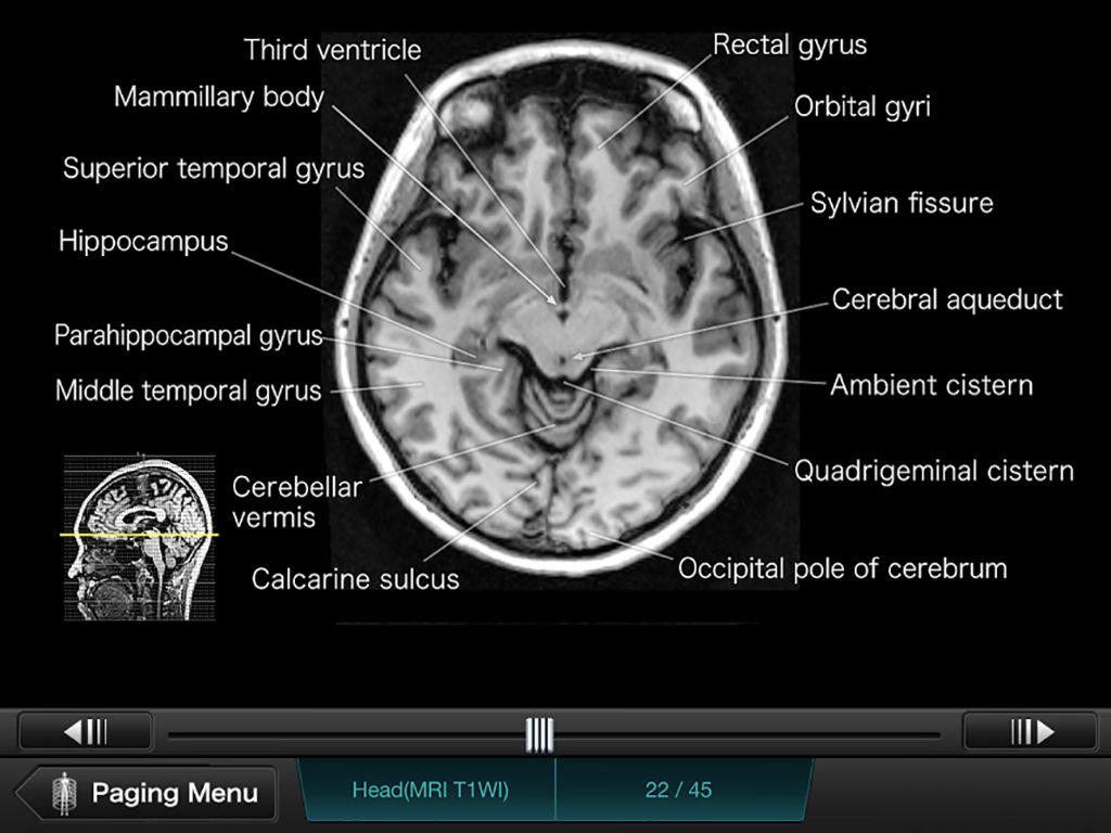 Interactive CT and MRI Anatomy App Ranking and Store Data | App Annie