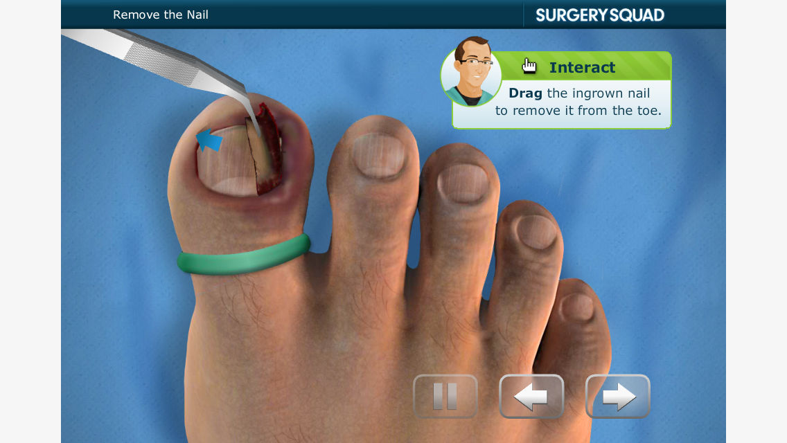 Ingrown Toenail Removal App Ranking and Store Data | App Annie